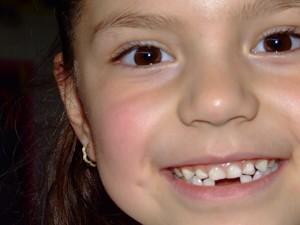 Imagem da notícia: Crianças de oito, 11 e 14 anos com cheque-dentista