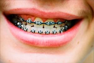 Imagem da notícia: 1º Meeting Internacional de Ortodontia Autoligável