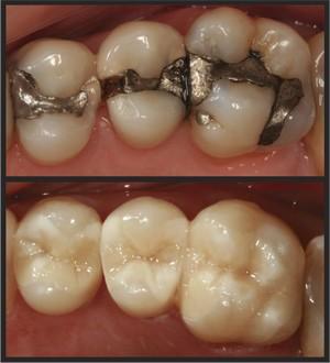 Imagem da notícia: Curso Modular Teórico-Prático de Dentisteria Estética