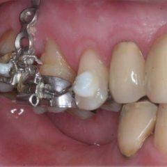 Imagem da notícia: Ancoragem Ortodôntica com Mini-implantes e Mini-placas