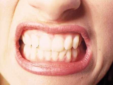 Imagem da notícia: Síndromes genéticas podem alterar o posicionamento dos dentes
