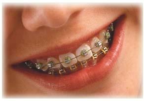 Imagem da notícia: Sensibilização para a ortodontia