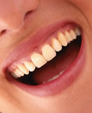 Imagem da notícia: Qualidade da comida interfere na saúde dentária