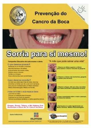 Imagem da notícia: Consulta de diagnóstico precoce do cancro oral gratuita