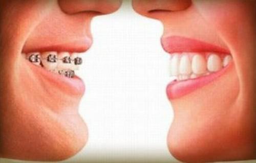 Imagem da notícia: Dia Mundial da Saúde Oral assinala-se hoje