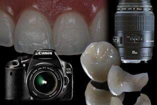Imagem da notícia: Curso de fotografia dentária