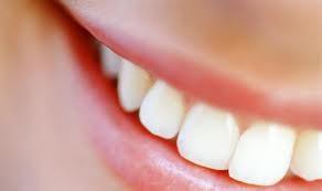 Imagem da notícia: Dentistas querem que branqueadores sejam vendidos apenas com receita