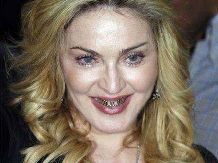 Imagem da notícia: Madonna forra dentes de ouro e diamantes
