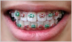 Imagem da notícia: Irlandeses alertados sobre os rápidos alinhamentos dentários