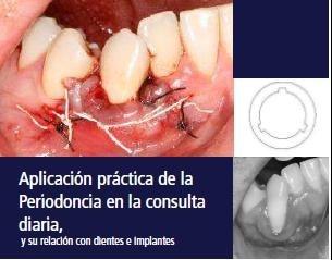 """Imagem da notícia: """"Integração prática em Periodontia num ambiente clínico habitual"""""""