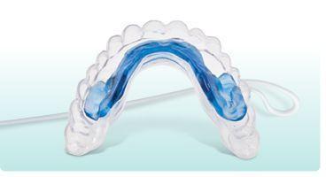 Imagem da notícia: Um balão que corrige o alinhamento periodontal