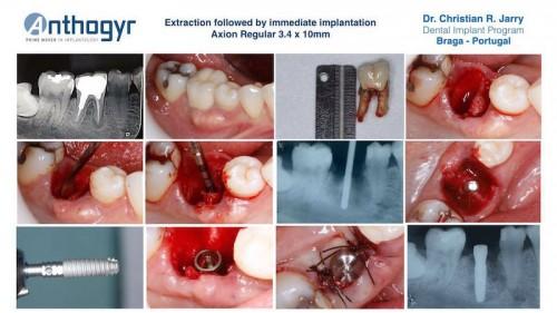 """Imagem da notícia: """"Capacitação em Implantes Dentários"""""""