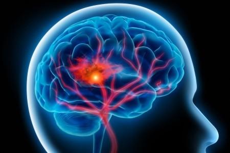 Imagem da notícia: Bactéria oral pode estar associada a problemas cerebrais