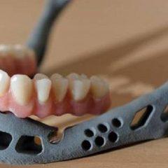 Imagem da notícia: Eis o primeiro transplante de mandíbula criado em impressão 3D