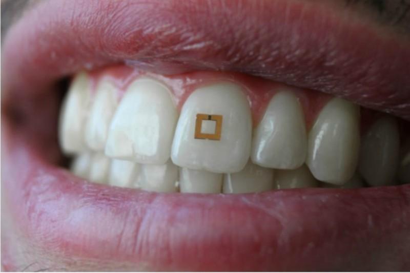 Imagem da notícia: Sensor dentário monitoriza alimentos ingeridos