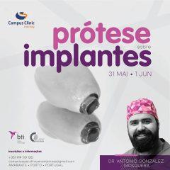 Imagem da notícia: Campus Clinic recebe curso Prótese sobre Implantes