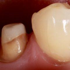 Imagem da notícia: Curso de reabilitação de dentes endodonciados com participação de Miguel Ramos e Vítor Freitas