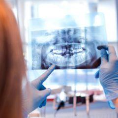 Imagem da notícia: OMD organiza webinar sobre licenciamento radiológico