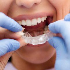 Imagem da notícia: Invisalign Go: nova plataforma e formação para médicos dentistas