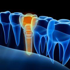 Imagem da notícia: Algoritmo permite responder no tratamento da peri-implantite